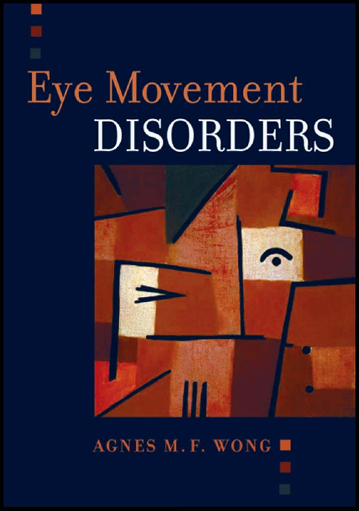 Eye Movement Disorders